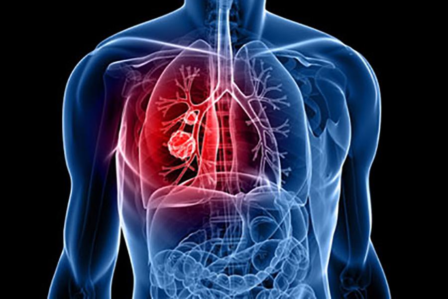 Cardiotoracica